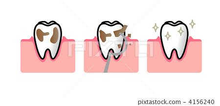 图库插图: 防止蛀牙 预防牙齿疾病 牙菌斑