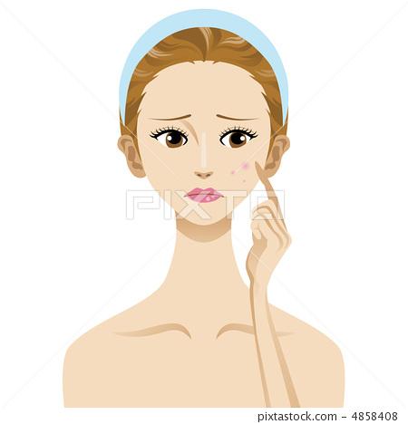 图库插图: 皮肤麻烦疙瘩