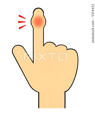 插图 脸部_身体 身体_身体部分 手指 伤害 受伤 伤口  *pixta限定素材