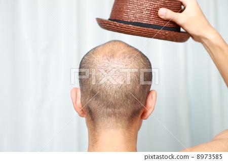 收藏夹 下载水印图 同一模特 相似 照片 关键词 脱发系列, 稀疏的头发