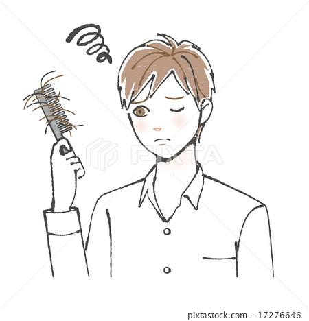 图库插图: 遭受掉头发的男性例证