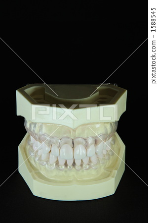 Closed state of the jaw model seen from above somewhat 1588545
