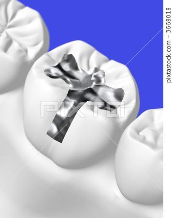 Dental treatment 3668018