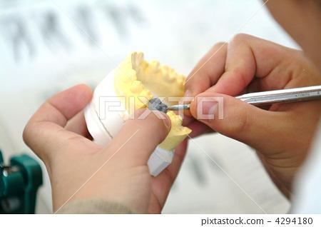 dental technician, tooth-mark, dental mold - Stock Photo [4294180