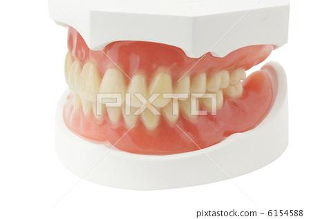 Total denture 6154588