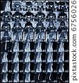 断层摄影术 核磁共振成像 核磁共振 6756026