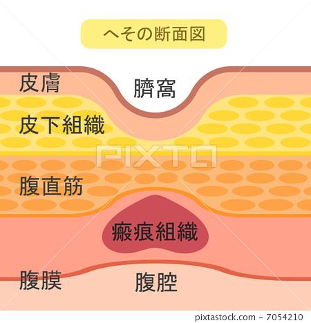 肚脐的剖面图 7054210