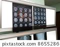 x光透射片 普通體檢 測試結果 8655286