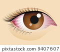 Congested eyes 9407607