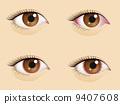 Congested eyes 9407608