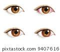 Congested eyes 9407616