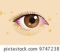 Congested eyes 9747238