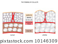 forming cellulite 10146309