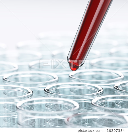 Laboratory blood test 10297384