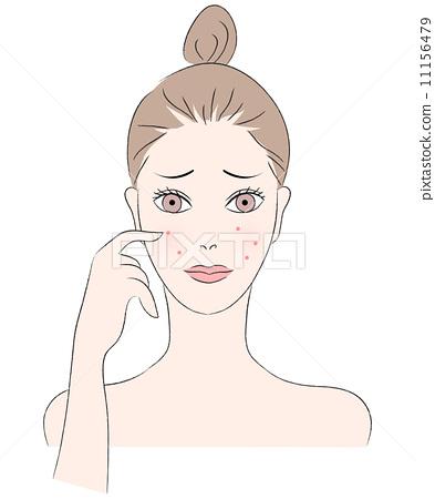 pimple, acne, female 11156479