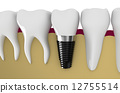 dental implant 12755514