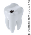 Tooth with black hole caries 12917878