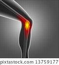 Kneee pain 13759177