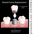 replacement, dental, crown 14429081