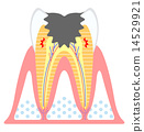 cary, cavity, decayed tooth 14529921