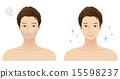 남성 얼굴 에스테틱 수염 제모 15598237