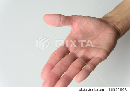 皮膚粗糙 16393898