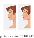 Chin before and after plastic surgery 16408983