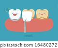 Veneers teeth of dental 16480272
