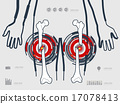 vector illustration of the leg fracture 17078413