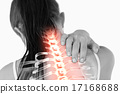 Highlighted spine of woman with neck pain 17168688