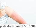 여성 일본인 선탠 선탠 자외선 팔 방심 그을린 팔 여름에주의 한여름 염증 피부 17202286