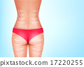 Lines, showing surgery on female body. Vector. 17220255