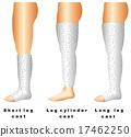 Leg casts 17462250