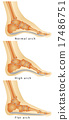 Arch of Foot 17486751