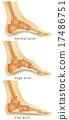 脚 解剖学 单调 17486751