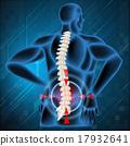 疼痛 脊柱 骨頭 17932641