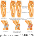 Fractures of Femur 18482676