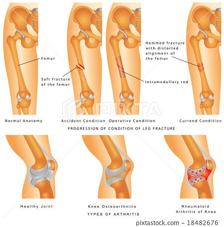 Fractures of Femur 18482676