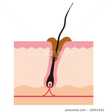 Sectional view of hair root Rooted dirty pore 18662692