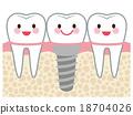 牙齿 齿轮 植入 18704026