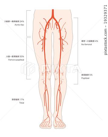 다리 동맥 폐색의 호발 부위 (텍스트) - 스톡일러스트 [19329371] - PIXTA