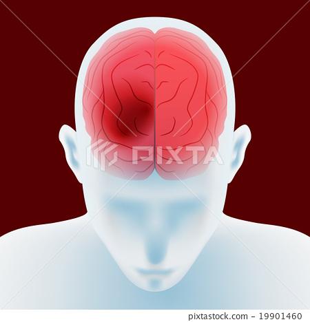 headache, vector, vectors 19901460