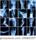 Collection X-ray multiple bone fracture 19980597