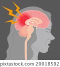 headache, brain, the 20018592