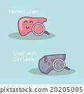 Health liver vs cirrhosis liver 20205095