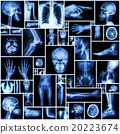 Collection X-ray multiple part of human 20223674