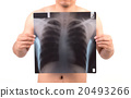 unidentify person showing x-ray film 20493266