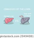 Health liver vs cirrhosis liver 20494081