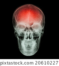 X-ray skull and Stroke  20610227