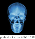 X-ray skull and Stroke 20610230